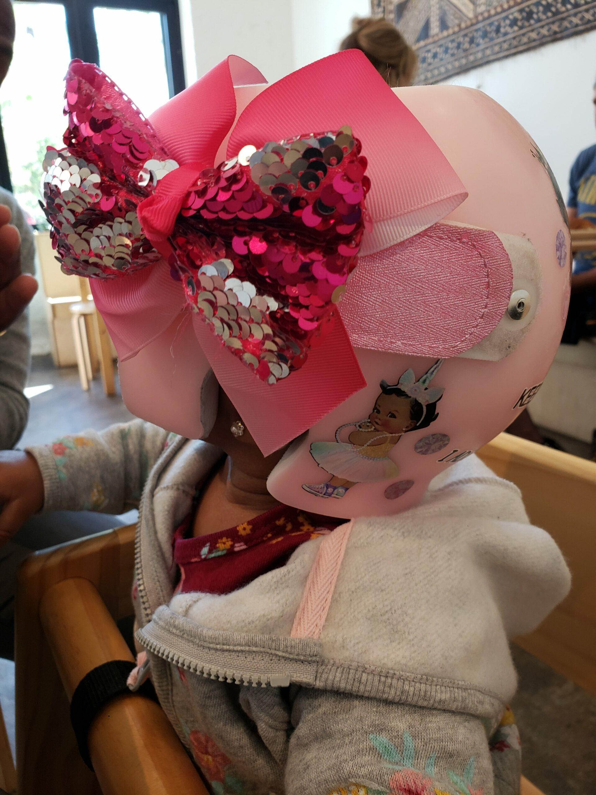 baby princess cranial band