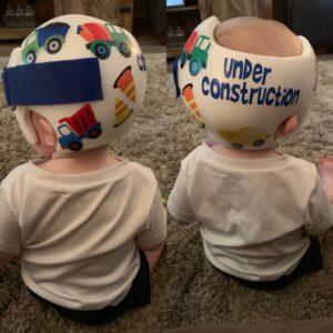 Construction 3 cranial band