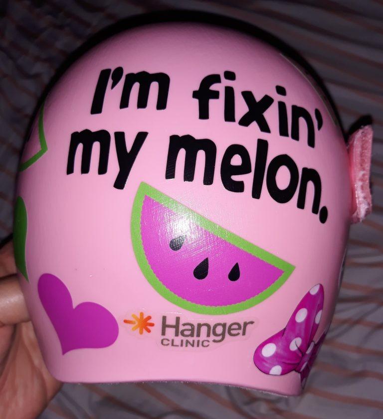 Fixin my melon cranial band