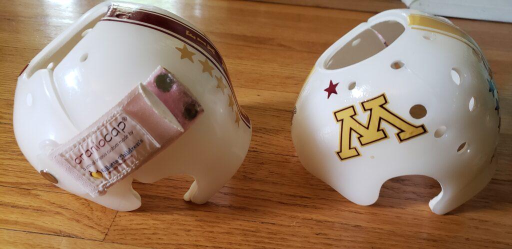 Minnesota cranial bands