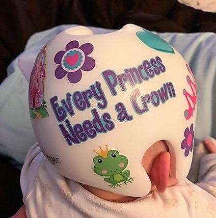 Princess cranial band