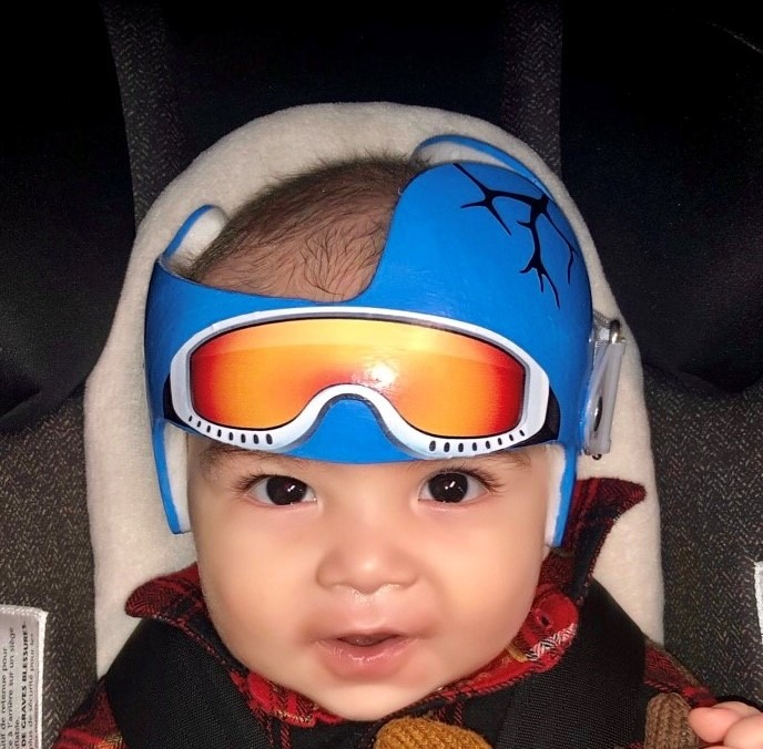 Ski goggles doc band